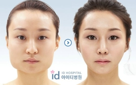 The power of cosmetic surgery to be less Asian like